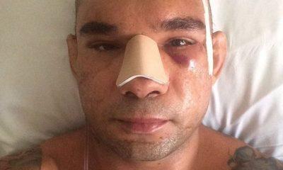 Evangelista Cyborg Santos injury