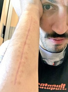 Enes Kanter Shows Off His Bloody Scar