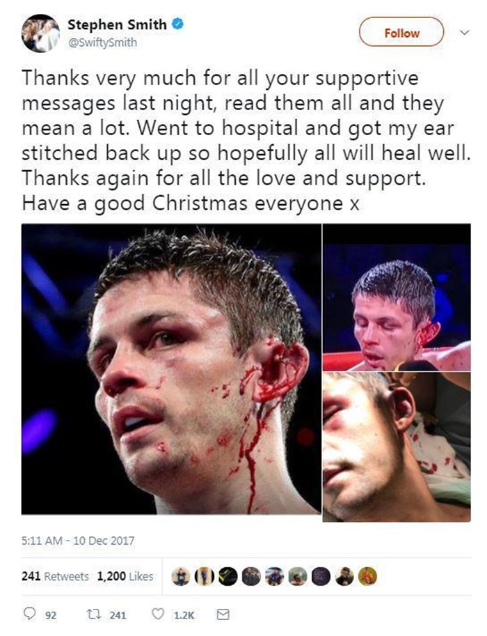 Boxer Stephen Smith Recovering After Ear Almost Gruesomely Torn Off in Fight