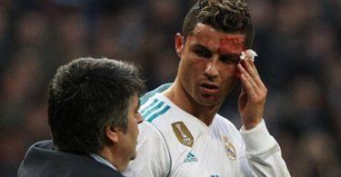 NOOOO...NOT The Face! Cristiano Ronaldo Gets Bloody Win