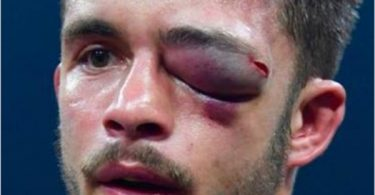 Boxer Anthony Yigit Eye Injury Swells to Size of Baseball