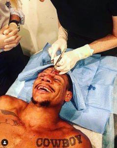 Alex Oliveira Survives After Exploding Grenade