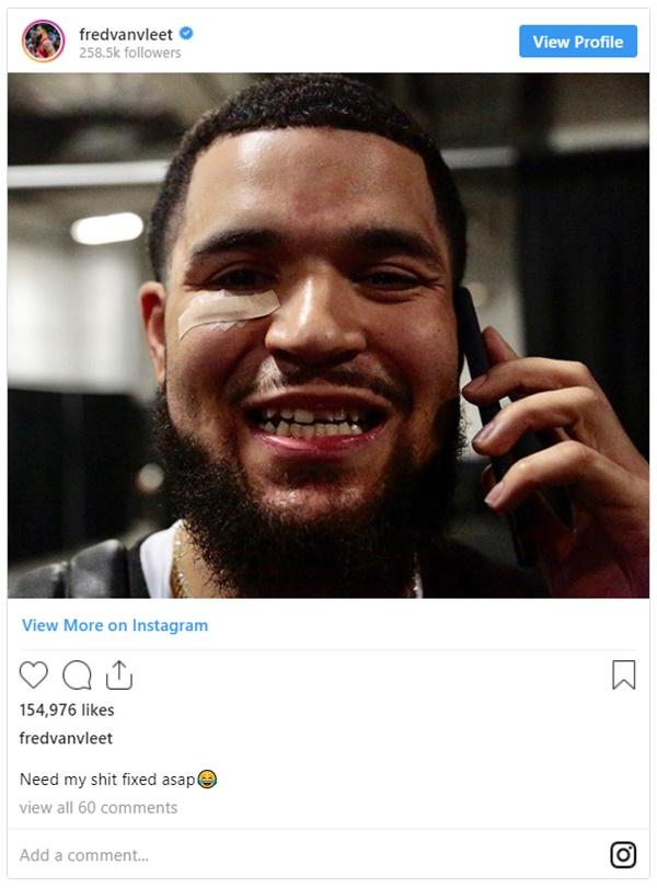Raptors guard Fred VanVleet Lands 7 Stitches and Broken Tooth
