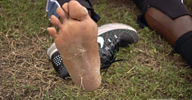 """Antonio Brown Says His Feet Are Being """"Circumcised"""""""