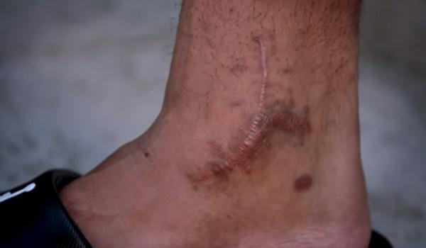 Dak Prescott Shows Off His Gruesome Ankle Scar